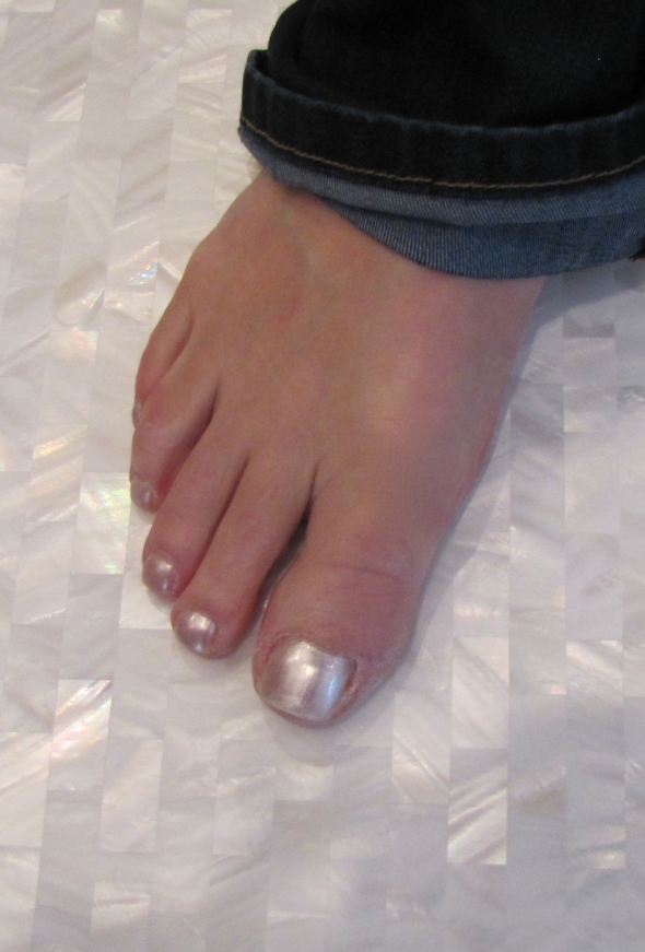 Susie's toes